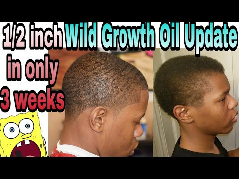 Wild Growth Oil Update / Does it work? / HOW TO GROW YOUR HAIR FAST NATURALLY