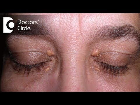 How to get rid of skin tags from upper eyelids or eye region?-Dr. Nischal K