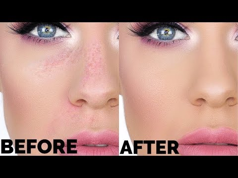 HOW TO STOP PATCHY FOUNDATION!!!!