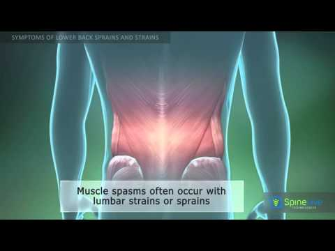 Lower Back Sprains and Strains Symptoms