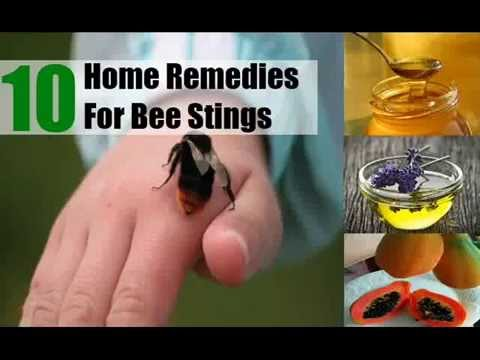 10 Home Remedies For Bee Stings