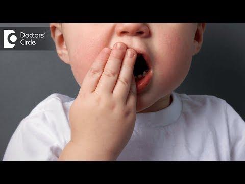Do children need filling of milk tooth? - Dr. Maneesh Chandra Sharma