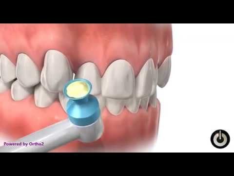 How Braces are attached? - Dr. Sarabjeet Singh   Chandigarh Orthodontics