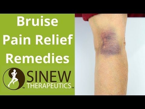 Bruise Pain Relief Remedies