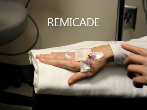 Rheumatoid Arthritis Treatment: REMICADE INFUSION