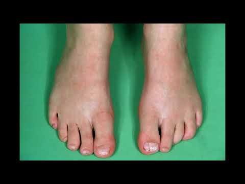 toenail fungus remedy hydrogen peroxide: toenail fungus vinegar hydrogen peroxide