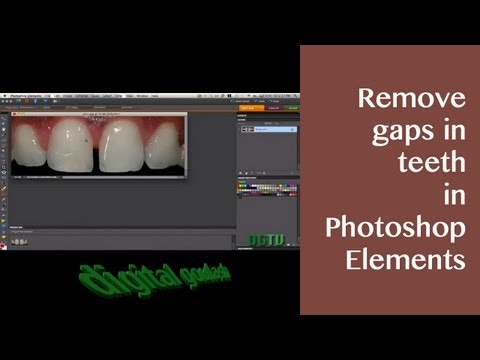 Learn Photoshop Elements - Remove Gaps in Teeth
