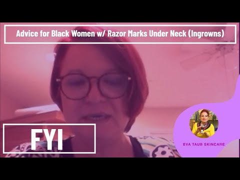 Advice for Black Women w/ Razor Marks Under Neck (Ingrowns)