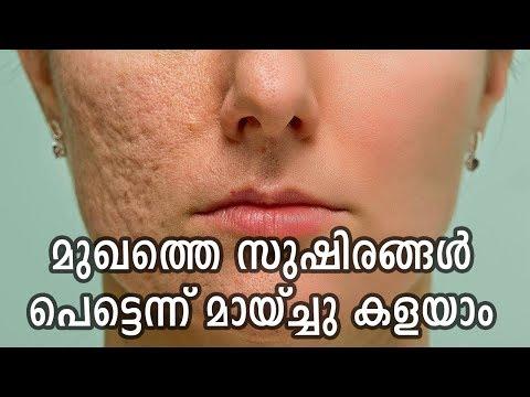 വെറും അഞ്ചു മിനിറ്റുകൊണ്ട് മുഖത്തെ സുഷിരങ്ങൾ അടക്കാം | Remove Skin Pores