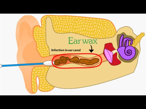 Ear Wax Removal - 2D Animation