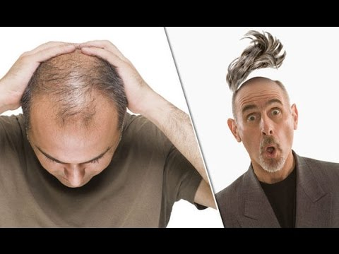 How to Stop Hair Loss | Regrow Hair Naturally | Male Baldness Cure