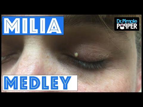 A Dr Pimple Popper Milia Medley
