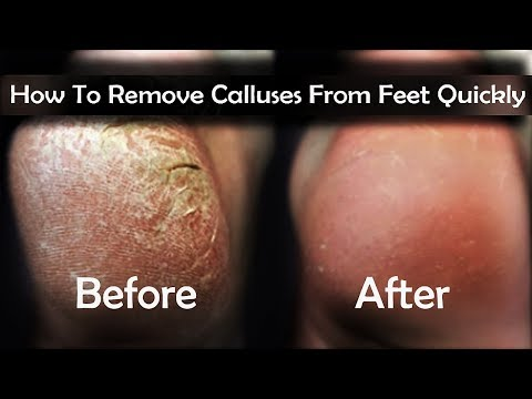 How To Remove Calluses From Feet - 4 Easy Ways to Remove Calluses on Feet Quickly