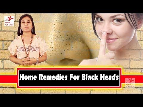 काले दाग (ब्लैक हेड) से कैसे छुटकारा पाएं - घरेलु उपाय !! Home Remedies For Black Heads !! Vianet