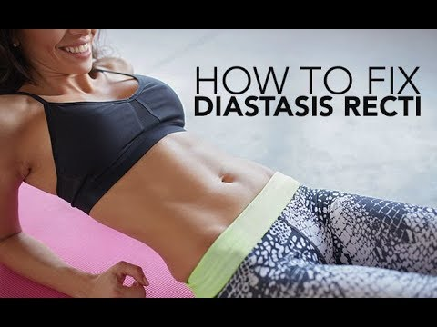 How To Fix DIASTASIS RECTI | Abdominal Separation | 4 Best EXERCISES & What To AVOID!!
