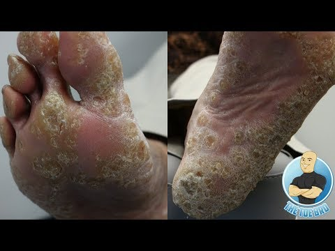 HOW TO TREAT FOOT CALLOUS AND CORNS - FOOT HEALTH MONTH 2018 #6