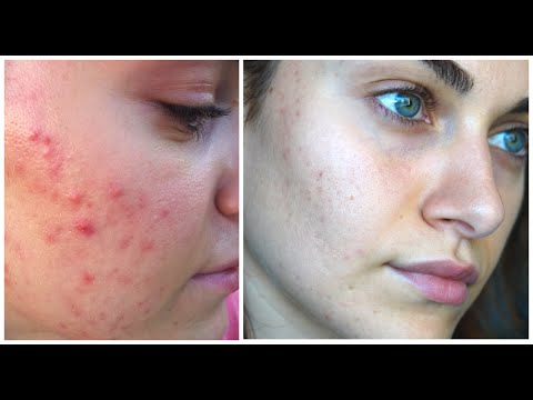How I Treated My Open Pores & Acne Scarring | RubyGolani