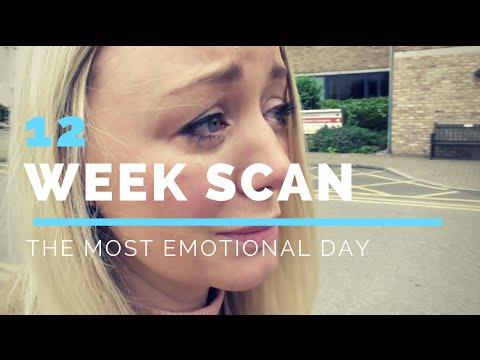 12 WEEK PREGNANCY SCAN