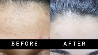 Get Rid Of Small Pimples And Lighten Skin Naturally Fast