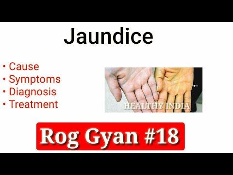 Rog Gyan #18 - Jaundice Causes, Symptoms, Diagnosis & Treatment