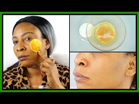 How To Get Rid Of Hyperpigmentation (Dark Spots, Acne Scars) Naturally At Home |Khichi Beauty