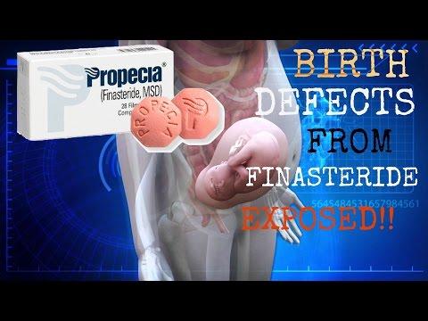 Pregnant Women + Finasteride = Birth Defects