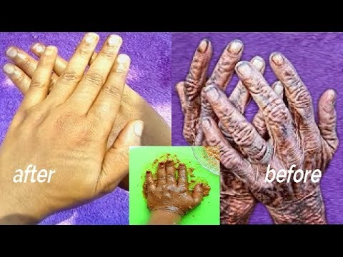 GET RID OF OLD LOOKING HANDS WRINKLES AND FINES LINES AND DARK KNUCKLES IN 15 MINUTES