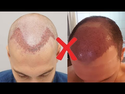 What To Do If Your Hair Transplant Treatment Failed
