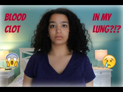 Blood Clot in my Lung | Near Death Experience