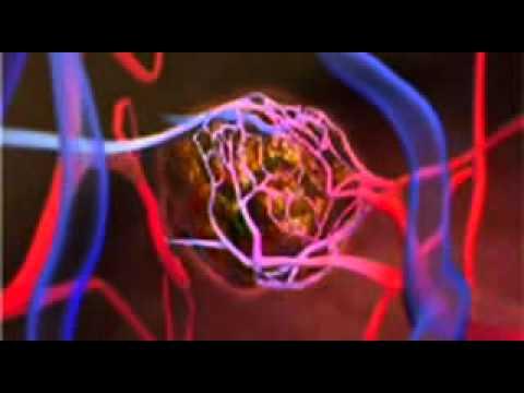 Liver Cancer - Causes of Liver Cancer Video - About.com_mpeg4