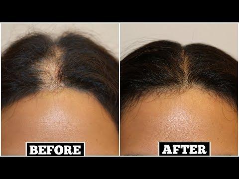 पतले बालों को तेजी से मोटा, लम्बा, घना बनाये, 1 दिन में बालों का झड़ना रोके | Miss Priya TV |