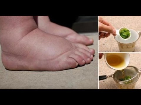 Powerful Home Remedy To Get Rid Of Swollen Legs Quickly