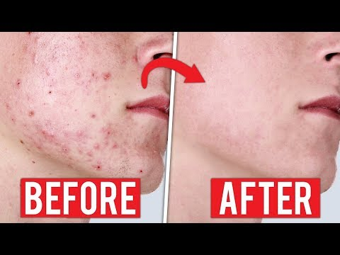 Natural acne treatment - 5 Chinese Medicine Remedies For Acne That Are All Natural On Your Skin