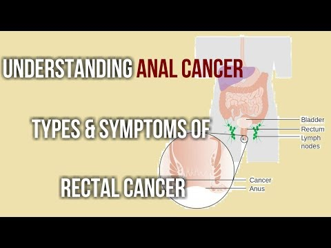 Understanding Anal Cancer Types & Symptoms of Rectal Cancer