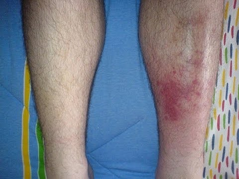 Cellulitis - Do Treatments Work? Symptoms