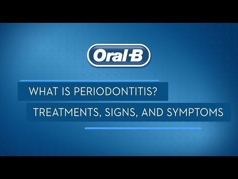 What is Periodontitis? Treatments, Signs, and Symptoms   Oral-B