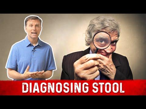 Diagnosing Your Stool