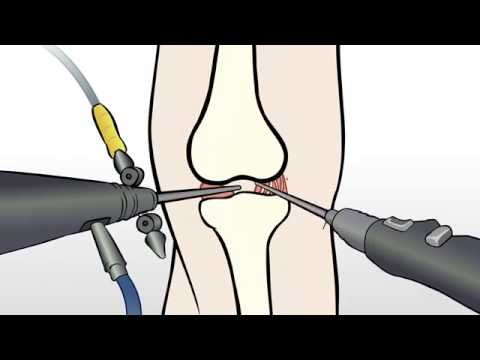 Regenexx Alternative to Knee Meniscus Surgery / Meniscectomy