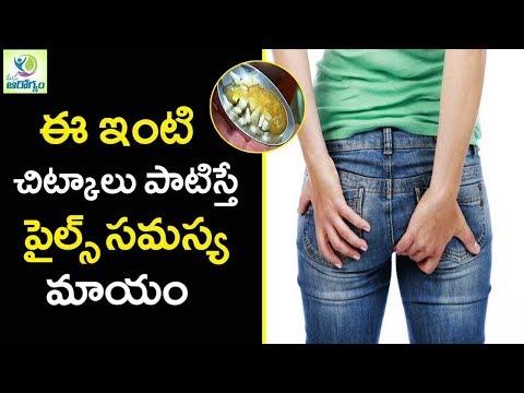 How to Get Rid of Hemorrhoids Piles Fast Naturally - Mana Arogyam Telugu health Tips
