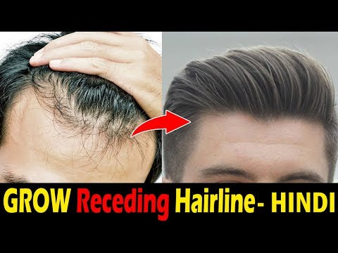 How To Stop Hairline Receding / Hair Loss Naturally | Receding Hairline Problem Men | Asad Ansari