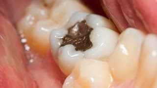 What Is Tooth Decay How To Get Rid Of A Toothache Pain In Tooth Oralb