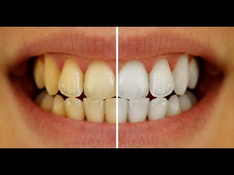 How to Whiten your Teeth | 3 Natural Ways to whiten your Yellow Teeth at Home Naturally