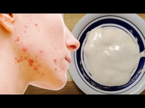 Apply This Baking Soda and Apple Vinegar Mask For 5 Minutes Daily And Watch What Happened?