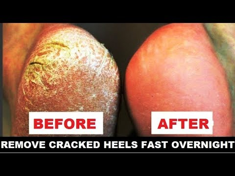 Remove Cracked Heels Fast