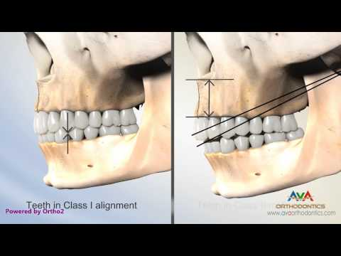 Overjet (AKA Overbite) Secondary to Vertical Maxillary Excess - Class II Malocclusion