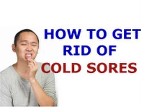 How to Get Rid of Cold Sores - How Cool Will it Be When You're Cold Sore Free