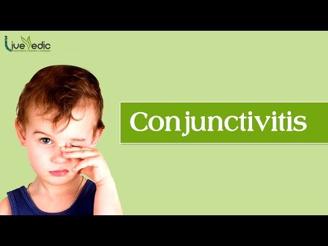 DIY: Best Cure For Kids Conjunctivitis with Natural Home Remedies | LIVE VEDIC