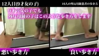 """【ホームページ】⇒ http://doufi2.com/youtuba/2t7qq9th  外反母趾はハイヒールが原因ではありません。 日ごろの""""ある""""悪い歩き方が原因で、外反母趾になってしまうのです。  外反母趾の方 100%全員に共通する、 """"ある""""悪い歩き方とは?  それは「ペタペタ歩き」なのです。  私は、外反母趾の専門家として13年間で 2000人以上の外反母趾患者の治療に向き合い、  この""""ペタペタ歩き""""を治す事で、外反母趾の辛い痛みを自分自身で、 自宅で簡単に改善させる方法にたどり着きました。   ↓ http://doufi2.com/youtuba/2t7qq9th     こちらでお伝えする内容の一部をご紹介すると...  ・外反母趾の患者さんが陥る7つの悪い歩き方とは? ・良い歩き方を身につける為の4つのコツとは? ・なぜ、歩き方を変えると外反母趾が改善するのか? ・なぜ、テーピングや外反母趾対策用の靴では治らないのか? ・内反小趾、タコ、魚の目、浮き指などの症状でも改善法は同じです ・親指が曲がるメカニズムとは ・隠れ外反母趾を見逃さない、古屋式 外反母趾判定法とは? ・症状レベルごとに用意された、古屋式トレーニングとは? ・一般的に指導されているタオルトレーニングなどの運動では効果が出にくい理由 ・普段履く靴には、どんな事に気を付ければよいか? ・立ち方にも悪い立ち方、良い立ち方がある  などなど、これらはほんの一部ですが、 このような内容をあなたにお伝えすることができます。  いかがでしょうか?  もし、少しでもご興味がおありでしたら、 ぜひ1度ホームページをご覧になってみてください。  きっとあなたの外反母趾も良くなります。  これまでの辛い痛みから解放されます。  そして・・・ 痛みなく歩ける喜びを知り、今まで以上に元気に、 そして楽しく外出することができるようになるでしょう。  イキイキと歩くあなた自身の姿を想像してみてください。   いかがでしょうか? ぜひそんな素敵な環境を手に入れて頂きたいと思います。  お待ちしています。 → http://doufi2.com/youtuba/2t7qq9th      ."""