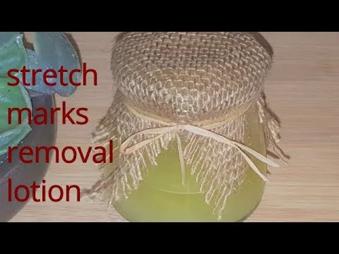 -How to get rid of stretch marks and scars fast & naturally/get the great results in few days!!!