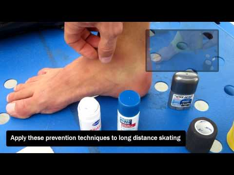 How to treat blisters from skating - inline skate blisters on feet, rollerblade blisters